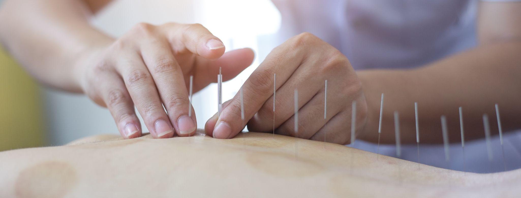 curso-de-acupuntura-espaco-ki